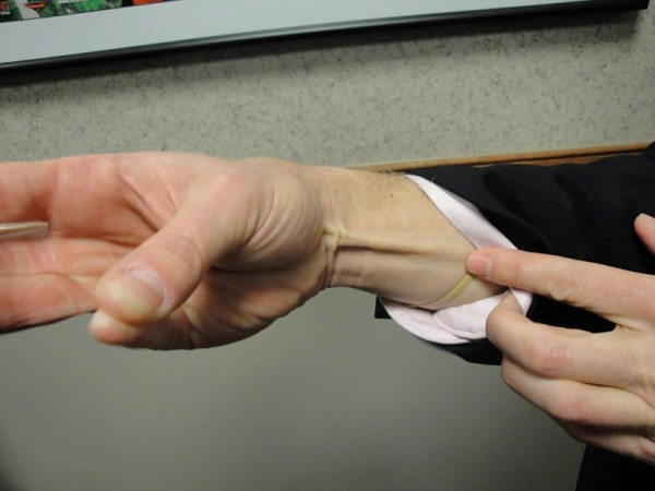 Dolga dlančna mišica