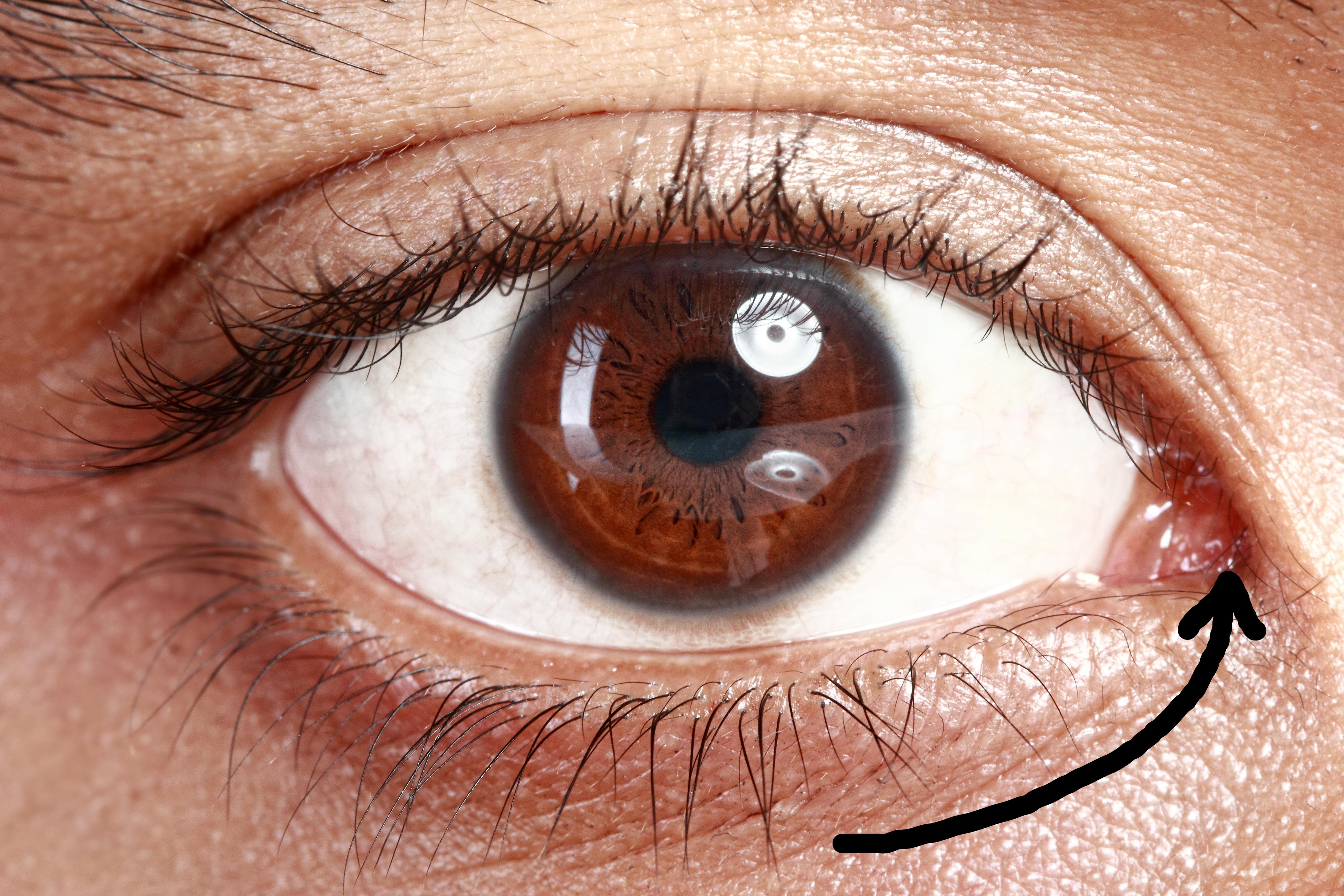 Karunkula – tretja prozorna kožna guba