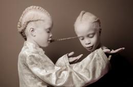 Edinstveni dvojčici s svojim videzom osvajata internet, Lara in Mara Bawar