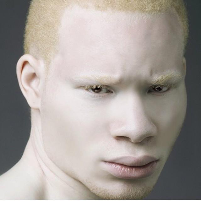 Albinizem